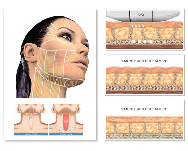 Non-Surgical Rejuvenation in 30 minutes with Ultherapy
