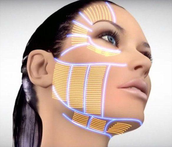 3D HIFU Altın Etki ile Ameliyatsız Gençleşin