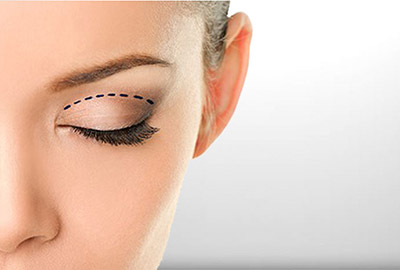 Eye-Lid-Operation-