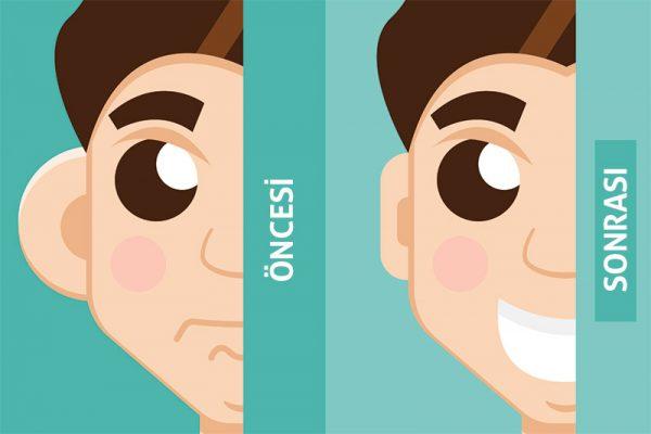 Otoplasty-Operation