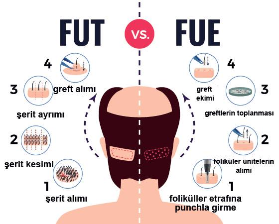 fut - fue