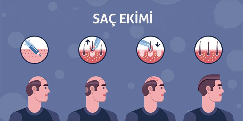 istanbul saç ekimi