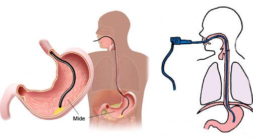 stomach botox