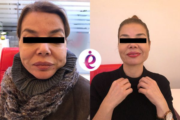 ip askı tekniği - Thread Face Lift