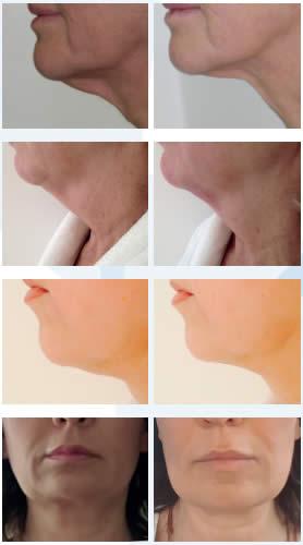 شدّ الوجه بالليزر باستخدام تقنية ENDOlift