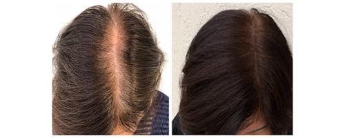 محاكاة الشعر